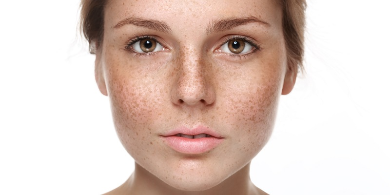 how to reduce melasma pigmentation