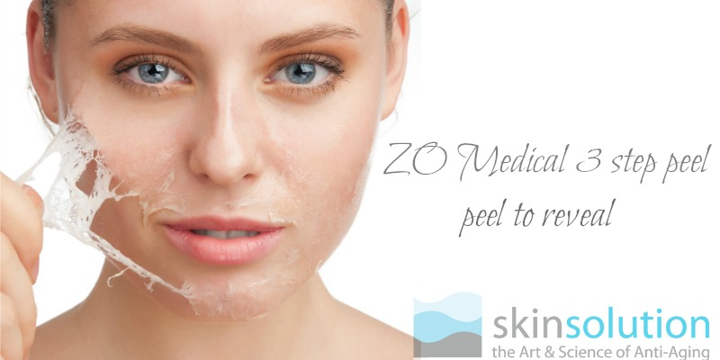 medical chemical peel