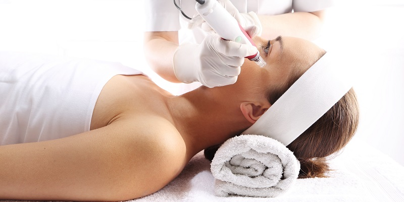micro needling for acne scars