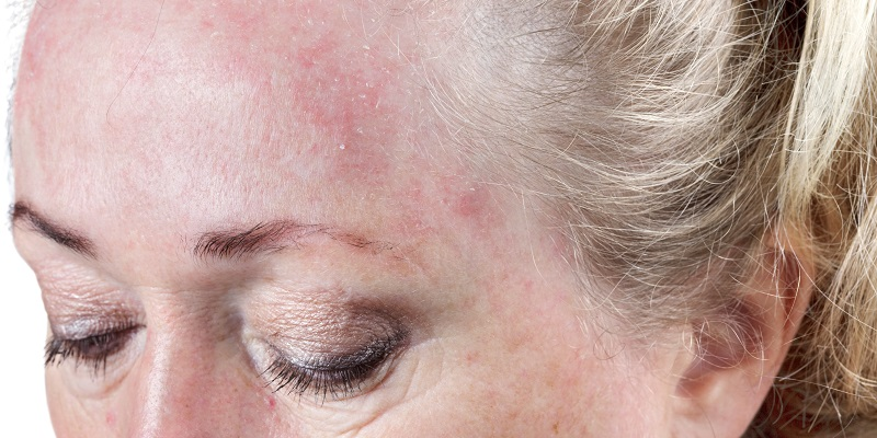rosacea bumps or acne
