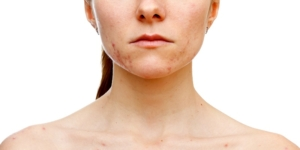 pcos acne treatment solution