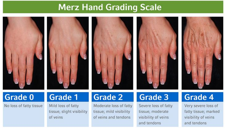 merz-hand-grading-scale