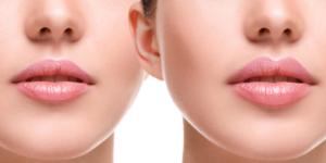 mini lip augmentation