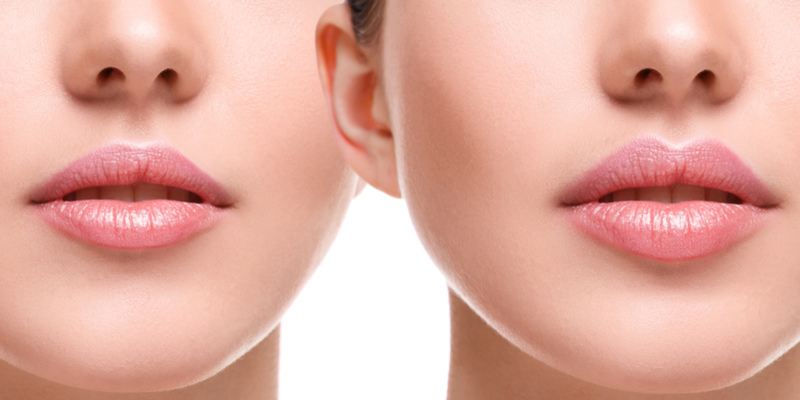 mini lip augmentation