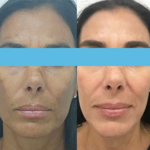 melasma before after