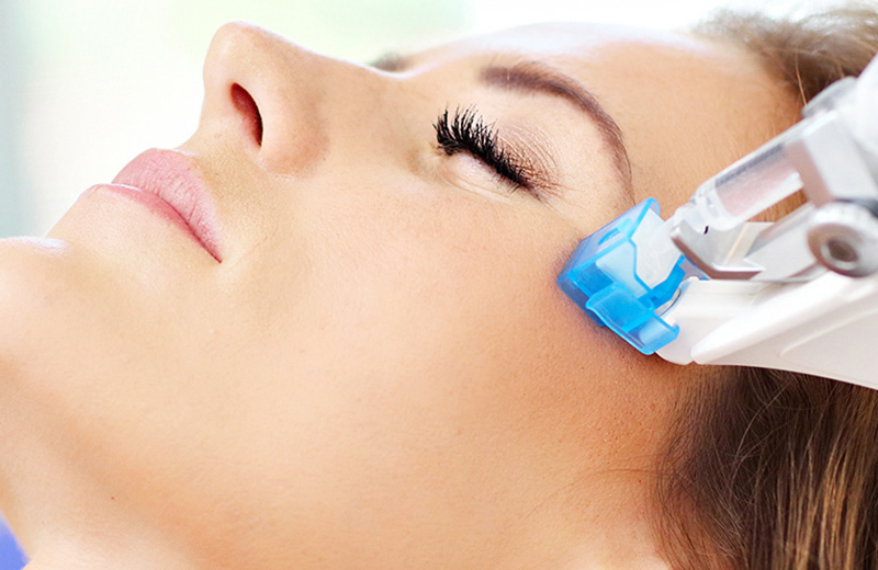 MESOTHERAPY VANCOUVER
